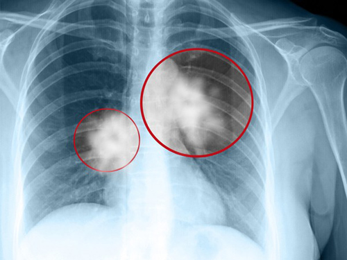 ung thư phổi - không nên chủ quan